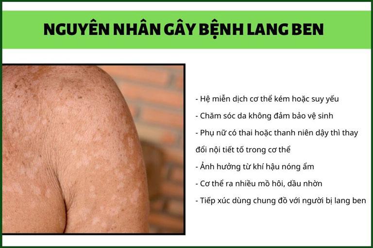 Nguyên nhân gây bệnh lang ben