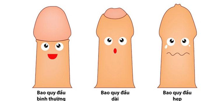 Hẹp/dài bao quy đầu là nguyên nhân khiến quy đầu nhạy cảm hơn