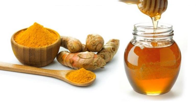 Tinh bột nghệ kết hợp với mật ong cách đơn giản trị đau dạ dày