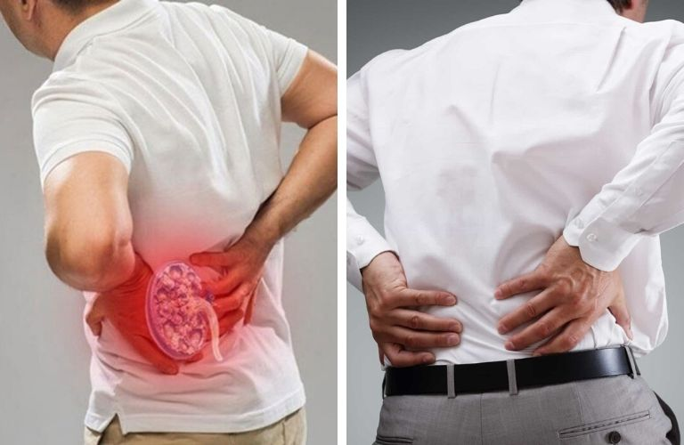 Người bệnh cần phân biệt đau lưng do thận yếu và nguyên nhân khác
