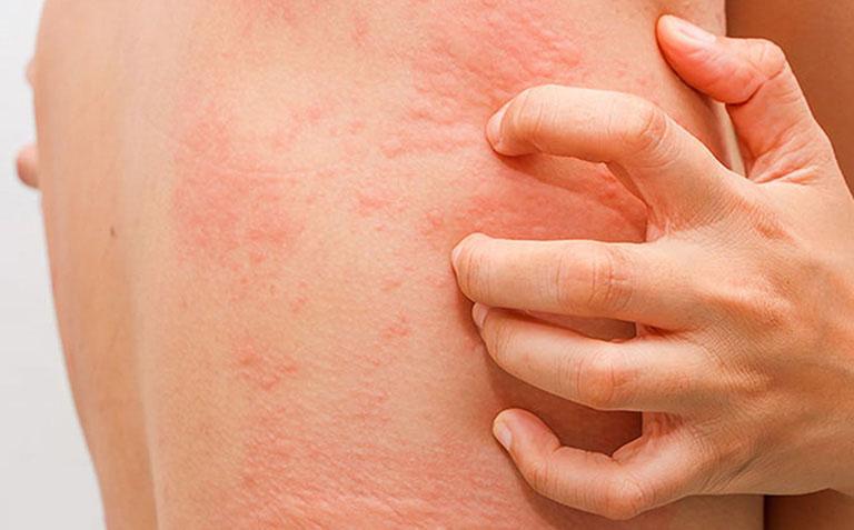 Có thể gặp một số tác dụng phụ khi sử dụng Tomax genta trị hắc lào
