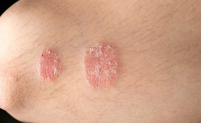Thuốc Tomax genta chỉ định trong các trường hợp hắc lào, dị ứng và bệnh ngoài da khác