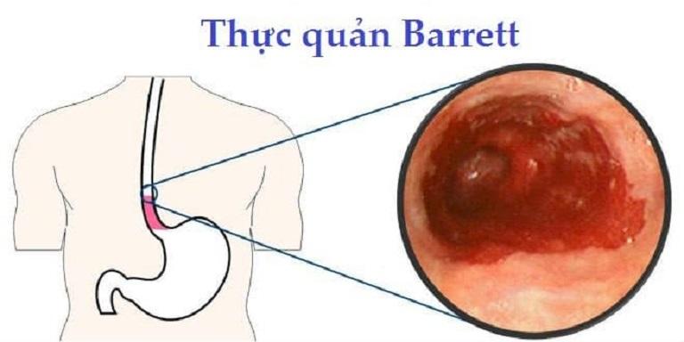 Barrett thực quản khiến nguy cơ ung thư tăng vọt