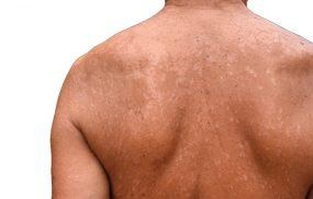Dấu hiệu nhận biết bệnh lang ben ở lưng