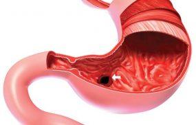 Viêm hang vị là căn bệnh phổ biến hiện nay