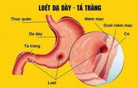 Viêm loét dạ dày là bệnh về đường tiêu hóa thương gặp
