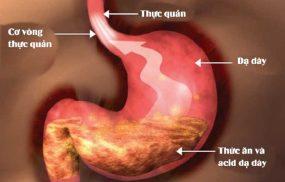 Bệnh trào ngược dạ dày có chữa khỏi được không?