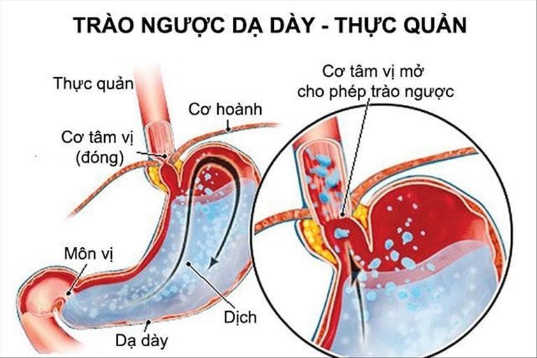 Trào ngược dạ dày thực quản là bệnh lý nguy hiểm có triệu chứng ợ nóng ợ chua