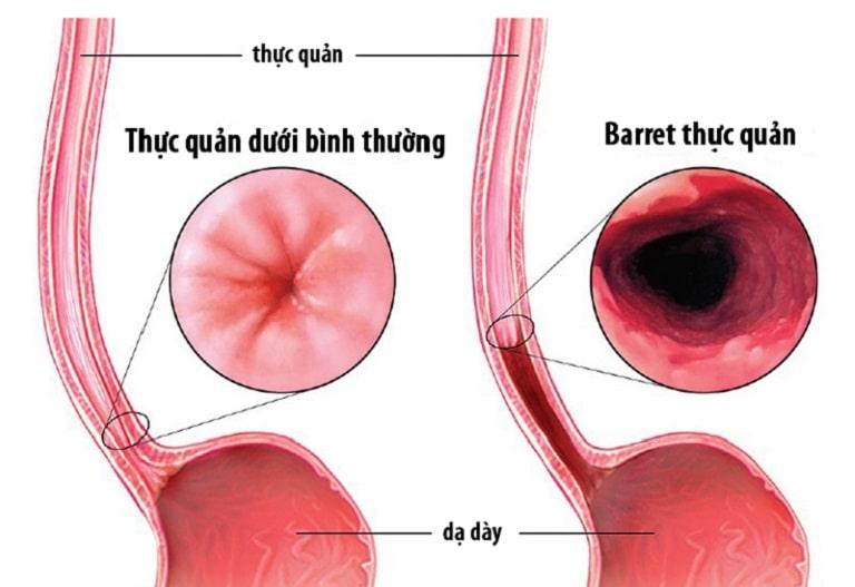Barrett thực quản là biến chứng nguy hiểm của bệnh trào ngược dạ dày