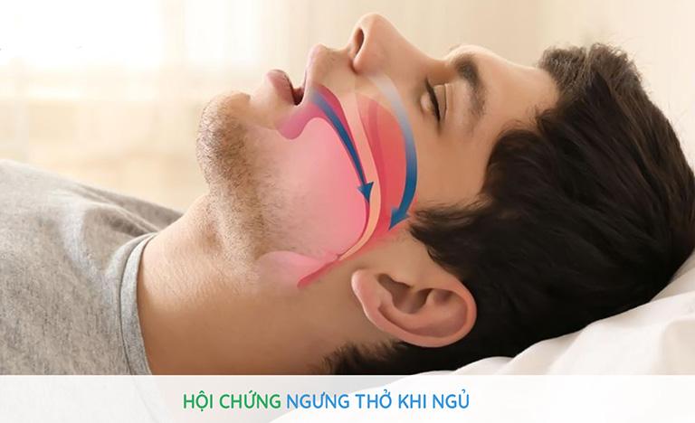 Trào ngược dạ dày có thể gây ngưng thở, làm suy giảm thần kinh và sức khỏe