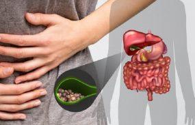 Trào ngược dịch mật là bệnh lý gây ra nhiều biến chứng nguy hiểm