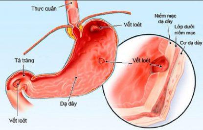 Viêm loét dạ dày cấp tính
