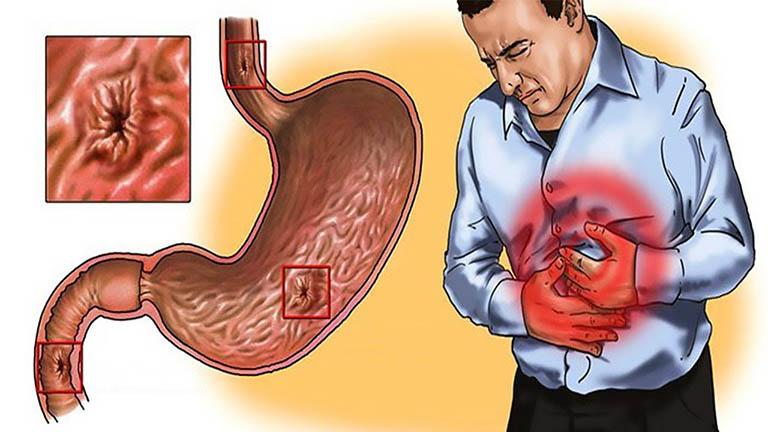 Viêm loét dạ dày cấp tính là bệnh phổ biến ở nhiều người