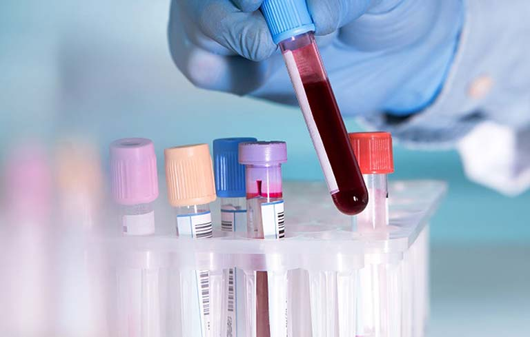 Xét nghiệm máu có độ chính xác không cao