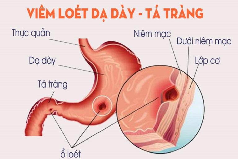 Viêm loét dạ dày tá tràng là một trong số nguyên nhân dẫn đến đau rát thượng vị