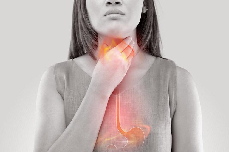 Trào ngược dạ dày thực quản là biến chứng nguy hiểm