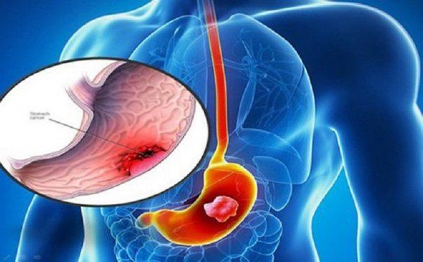 Vi khuẩn HP gây ung thư dạ dày là biến chứng rất nguy hiểm