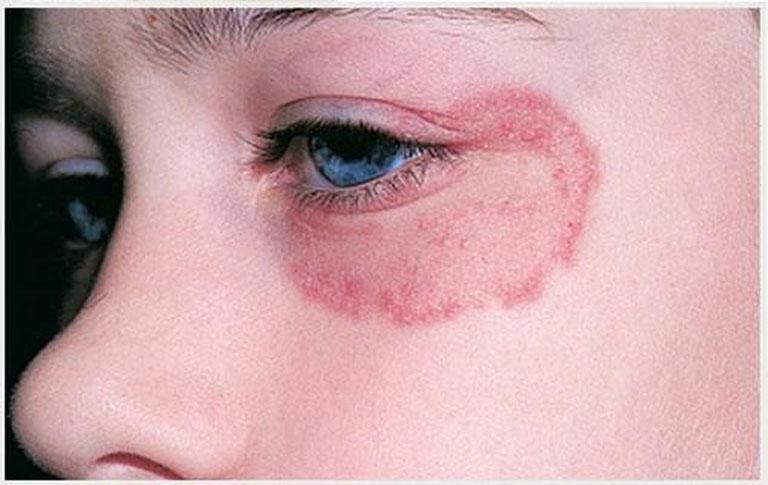 Làm giảm tổn thương trên bề mặt da do hắc lào gây ra bằng thuốc Tây y theo đơn kê của bác sĩ