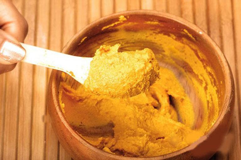 Đẩy lùi các triệu chứng của bệnh hắc lào tại nhà bằng hỗn hợp bột nghệ dầu dừa