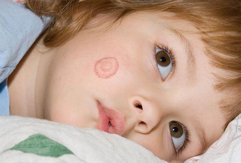 Lác đồng tiền gây ra những tổn thương màu đỏ có hình dạng tương tự như đồng xu trên da