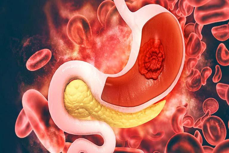 Viêm loét dạ dày nặng nếu không được điều trị đúng cách sẽ phát sinh biến chứng xuất huyết dạ dày