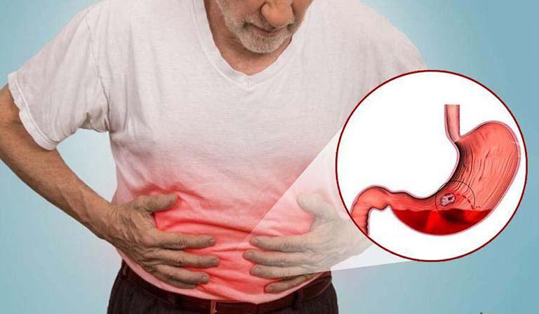 Xuất huyết tiêu hóa gây chảy máu trong lòng mạch, nguy cơ phát sinh biến chứng nguy hiểm