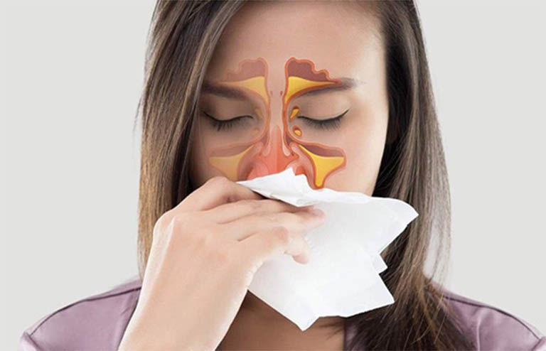 Viêm xoang là bệnh lý nhiễm trùng đường hô hấp thường gặp ở khi thời tiết chuyển biến lạnh