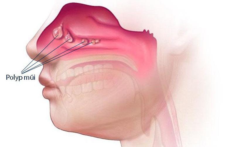 Xuất hiện khối polyp trong khoang mũi là một trong những yếu tố làm gia tăng nguy cơ khởi phát bệnh viêm xoang bướm