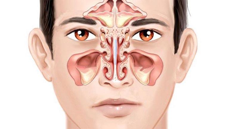 Dịch nhầy ứ đọng trong hốc xong gây bít tắc lỗ thông khí là nguyên nhân dẫn đến khó thở