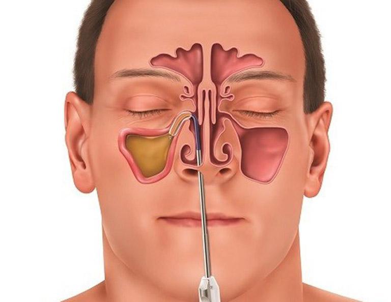 Chẩn đoán bệnh viêm xoang mãn tính bằng phương pháp nội soi có độ chính xác cao