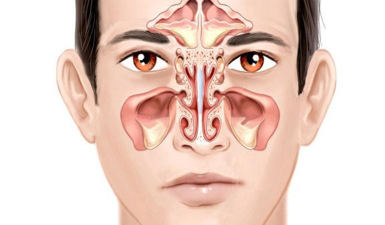 Viêm đa xoang là hiện tượng viêm nhiễm xảy ra tại nhiều hốc xoang cùng một lúc