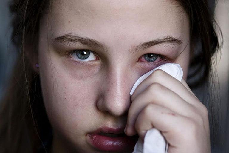 Viêm xoang ảnh hưởng đến mắt nếu không tiến hành điều trị kịp thời và đúng cách sẽ khiến thị giác người bệnh suy giảm nghiêm trọng