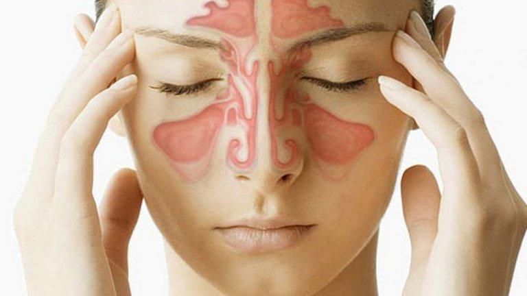 Viêm xoang cấp tính gây ra triệu chứng đau nhức khắp vùng mặt khiến người bệnh cảm thấy rất khó chịu