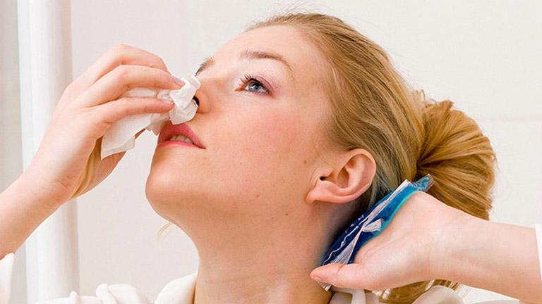 Viêm xoang chảy máu cam là dấu hiệu cảnh báo bệnh viêm xoang đã tiến triển nặng gây tổn thương nghiêm trọng đến niêm mạc mũi