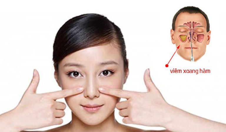 Viêm xoang hàm là loại bệnh viêm xoang xảy ra phổ biến nhất và dễ phát sinh biến chứng