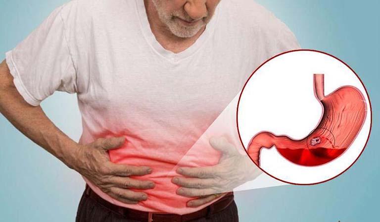 Xuất huyết dạ dày ở người già thường khỏi phát do các bệnh lý mãn tính tại dạ dày