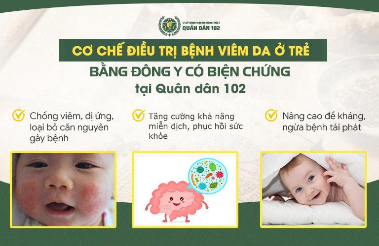 Giải pháp chữa viêm da Quân dân 102 giúp xử lý bệnh ở trẻ một cách toàn diện nhất
