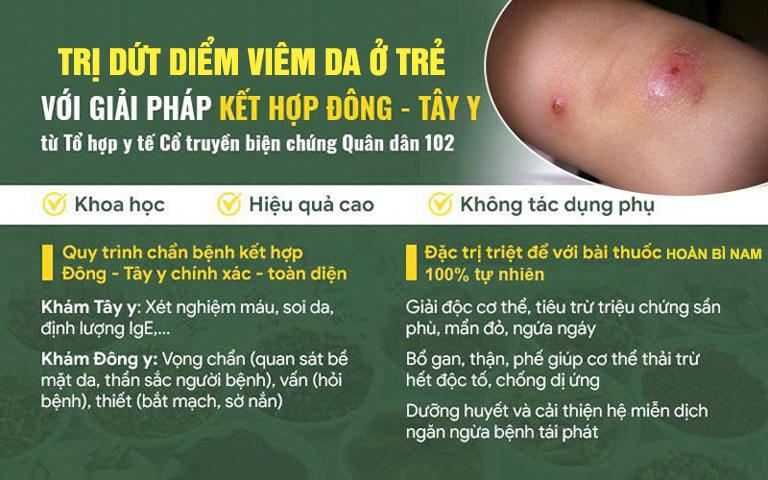 Chữa viêm da ở trẻ bằng Đông - Tây y kết hợp giúp mang lại hiệu quả tối ưu