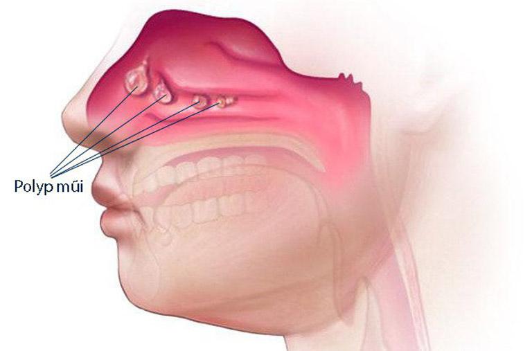 Viêm xoang gây tổn thương đến lớp niêm mạc mũi và kích thích hình thành nên các khối u polyp lành tính