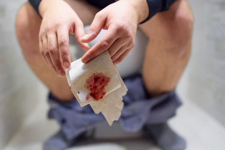 Triệu chứng điển hình của bệnh trĩ là xuất hiện lượng máu tươi trên giấy vệ sinh hoặc trong bồn cầu khi đi đại tiện
