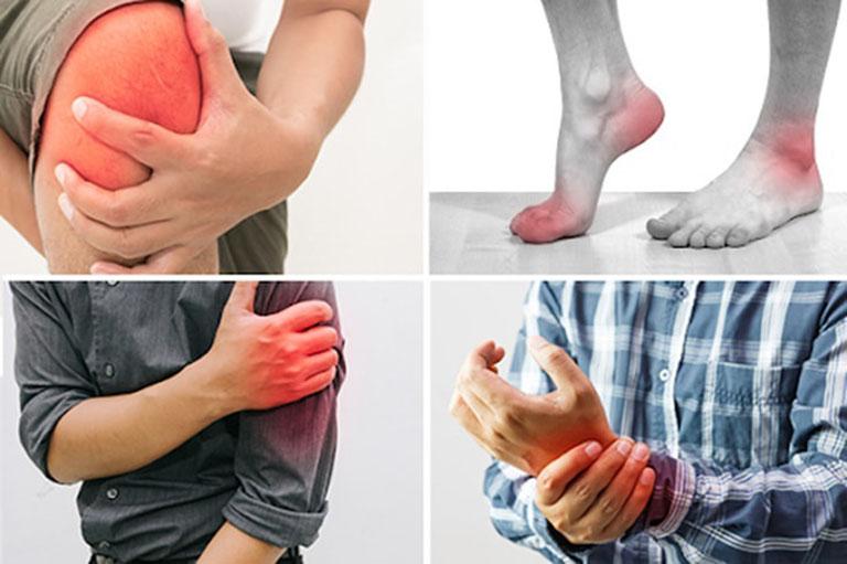 Bệnh viêm khớp