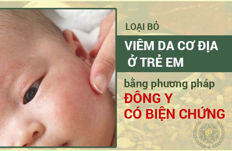 Chữa viêm da cơ địa ở trẻ em bằng thuốc viêm da Quân dân 102