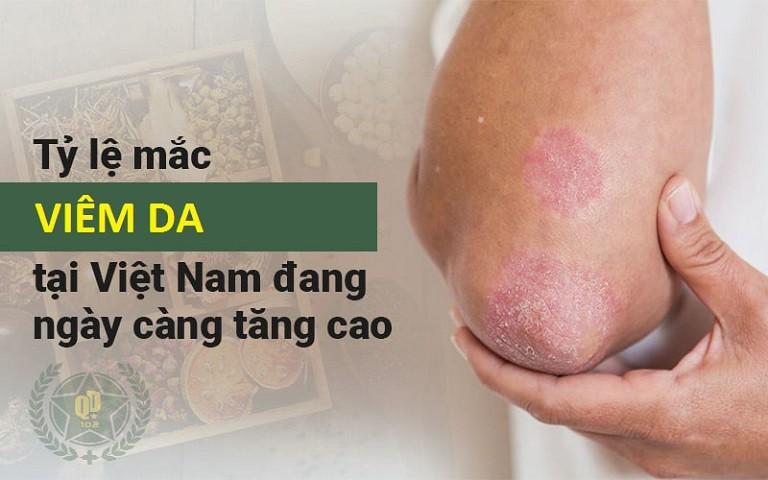 Viêm da là bệnh lý da liễu phổ biến, ảnh hưởng lớn tới tâm, sinh lý của người bệnh