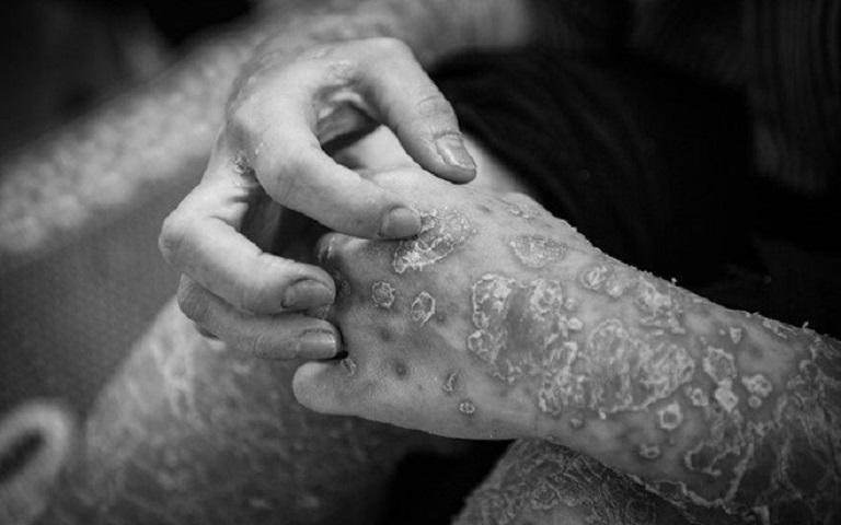 Vảy nến là nguyên nhân dẫn đến trầm cảm và các biến chứng ảnh hưởng tới sức khỏe