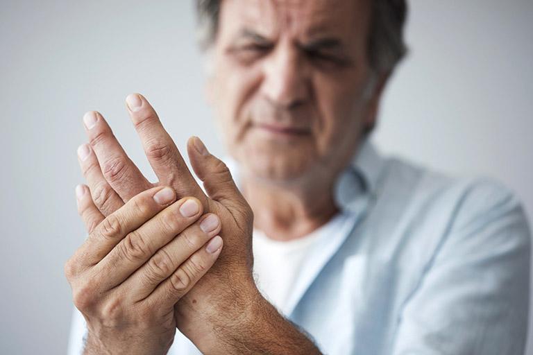 Viêm khớp dạng thấp là bệnh xương khớp điển hình có bản chất của bệnh mãn tính do rối loạn tự miễn trong cơ thể gây ra
