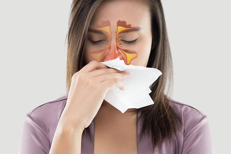 Các triệu chứng của bệnh viêm xoang gây ra không ít sự khó chịu làm ảnh hưởng đến công việc và chất lượng cuộc sống