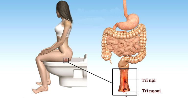 bệnh trĩ giai đoạn đầu (bệnh trĩ nhẹ)