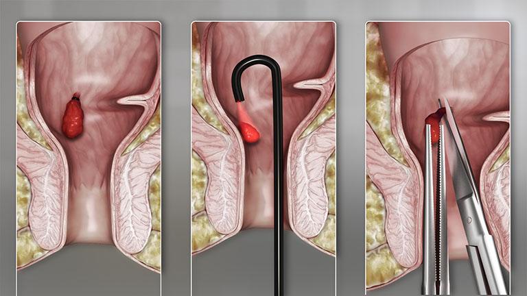 Một số thủ thuật điều trị bệnh trĩ nội phổ biến hiện nay