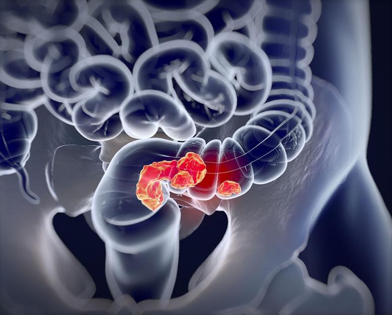 Ung thư đại trực tràng là biến chứng nguy hiểm nhất của bệnh trĩ nếu không được tiến hành điều trị kịp thời