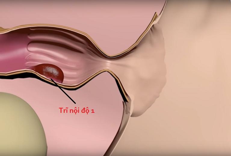 Bệnh trĩ nội độ 1 là mức độ nhẹ nhất của bệnh trĩ nội nhưng triệu chứng của bệnh khiến không ít người thường xuyên phải chịu cơn đau rát, ngứa ngáy